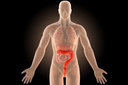 ulcerative colitis in large intestine